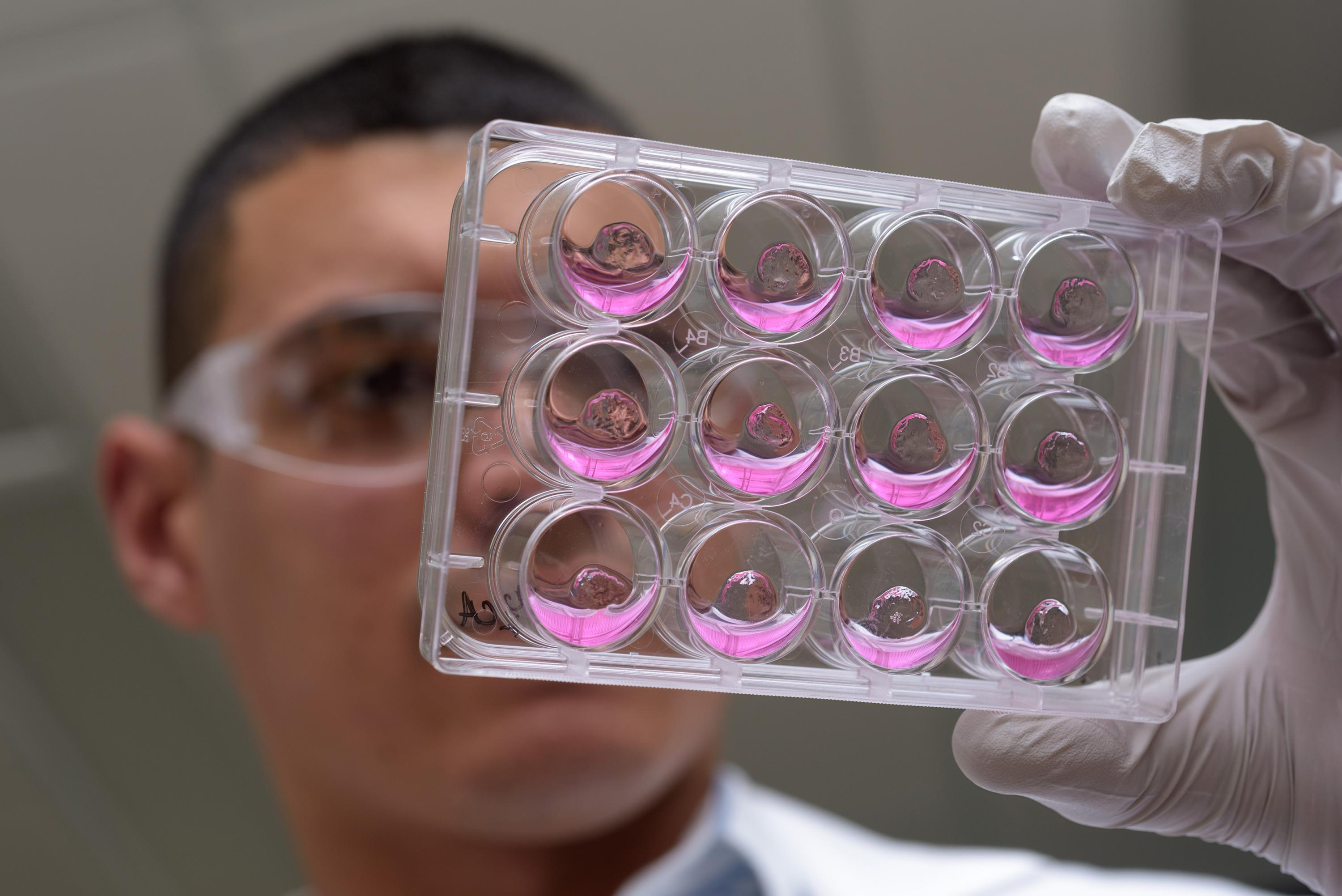 Georgia Tech Graduate Research Assistant Ricardo Cruz-Acuña holds multiwell plates containing hydrogel matrix materials and human intestinal organoids (HIOs). The research may lead to a new technique for treating injuries caused by gastrointestinal diseas